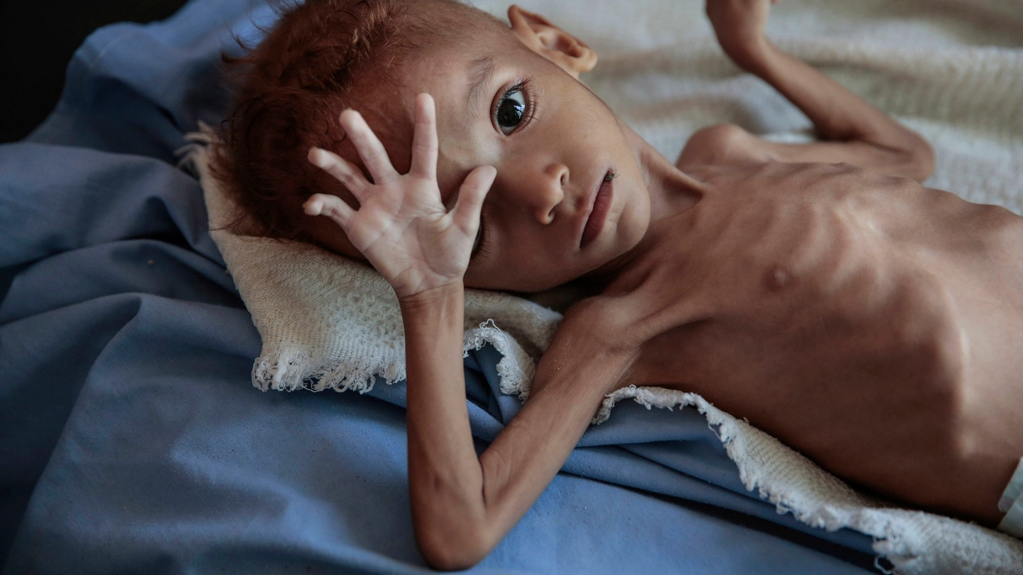 SAVE YEMEN CHILDREN